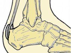 Болит пятка: что такое болезнь Хаглунда