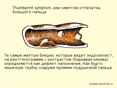 симптом отпечатка большого пальца